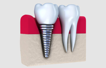 Smile Clinic-Allen Park, MI - Dental Implants