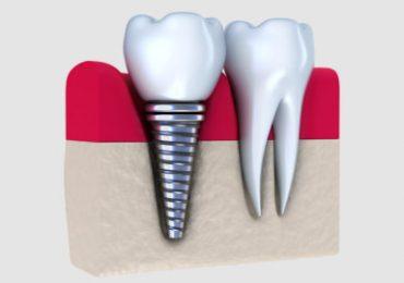 Smile Clinic-Allen Park, MI - Dental Implants