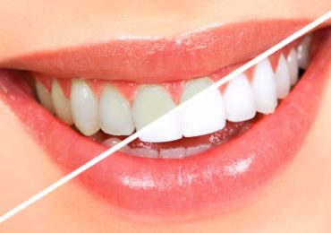Smile Clinic-Allen Park, MI - GLO Teeth Whitening